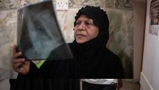 العراق: علاج مرضى السل المقاوم للأدوية المتعددة مريضًا تلو الآخر